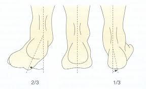 Nilkan ja jalkaterän asentovirheet.